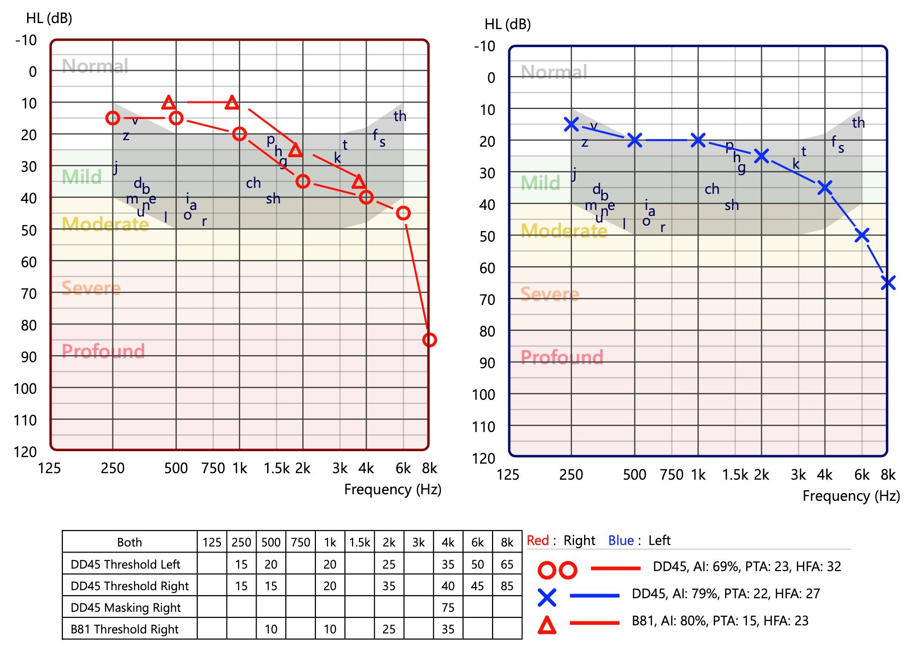 hearing-chart.png